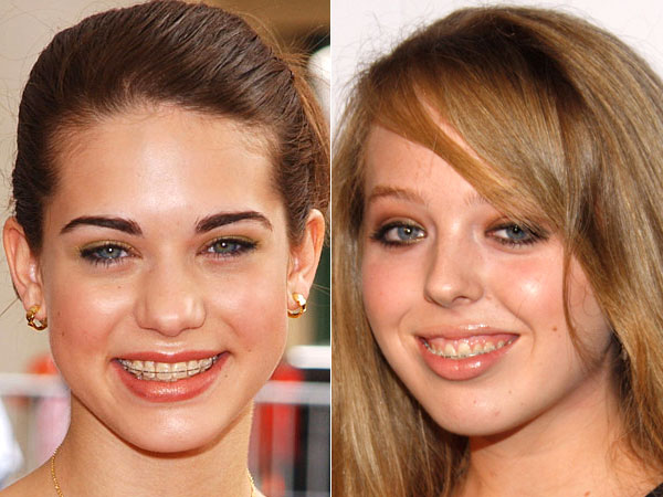 O Que Eles Pensam Sobre Dentes Just Lia Por Lia Camargo