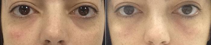 olheiras-preenchimento-antes-depois-002