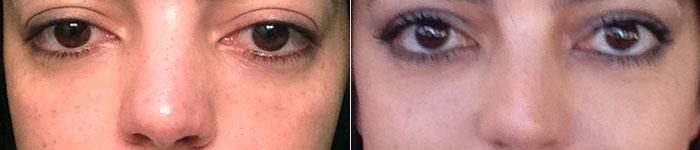 olheiras-preenchimento-antes-depois-003
