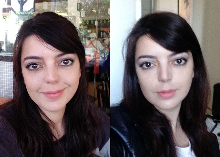 olheiras-preenchimento-antes-depois-004
