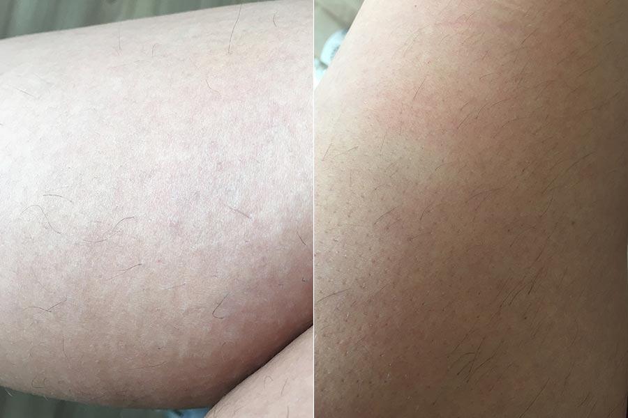 Parte debaixo da perna X Parte de cima da perna